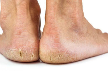 Quelques précautions avant de libérer les pieds pour l'été !
